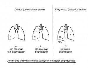 Crecimiento y diseminación del cáncer de pulmón en fumadores empedernidos